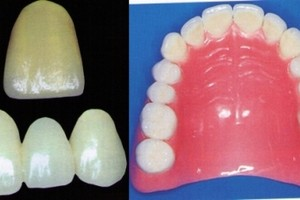 Protetyka zębów w ramach NFZ
