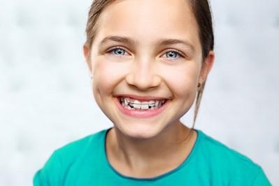 Jak prawidłowo dbać o zęby z aparatem ortodontycznym?