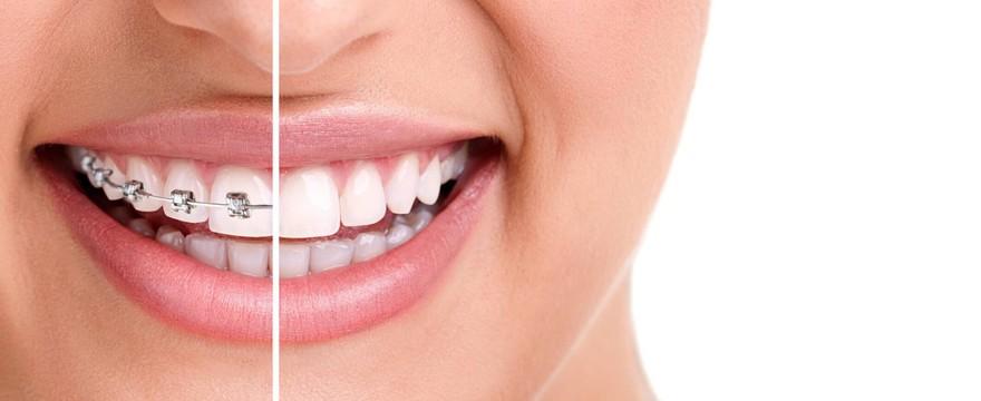 Zastanawiasz się nad aparatem ortodontycznym? Przedstawiamy aktualne ceny, rodzaje, trendy.