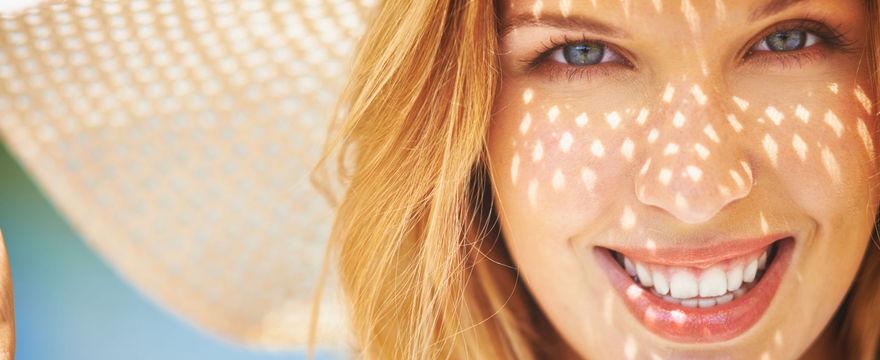 Przebarwienia na twarzy - sposoby na cerę bez plam